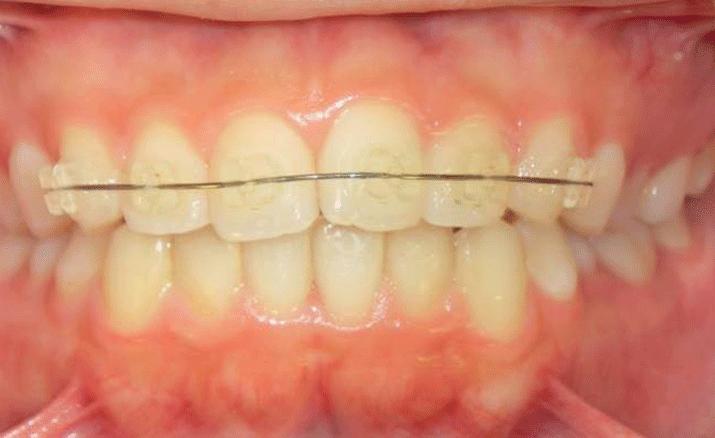 矯正治療:全顎矯正